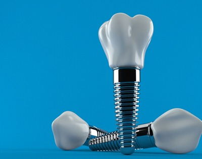 Three single tooth dental implants